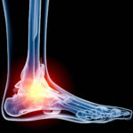 ankle_iStock_000013266061_Medium_72